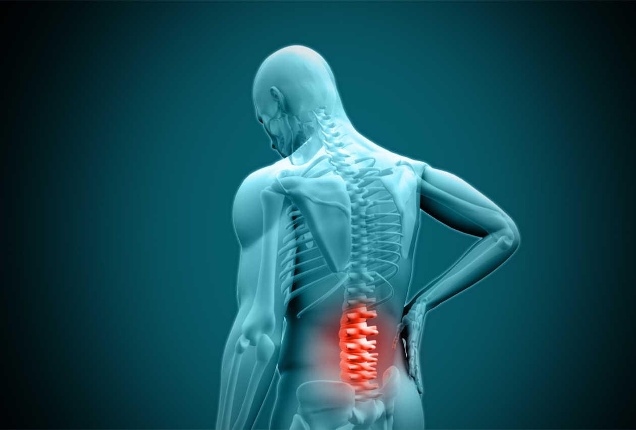 Ciatica tratada en Santander por Fisioterapia en Fisiokarma